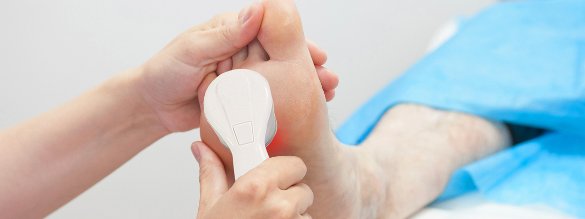 poole-bay-podiatry-LaserTreatment-Foot